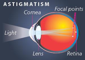 EyAstigmatism