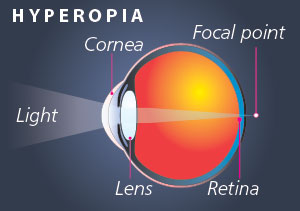 EyHyperopia