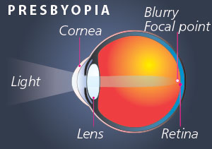 EyPresbyopia