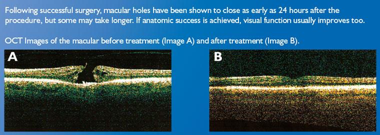 macular hole rand eye institute