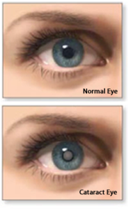 cataract-before-after