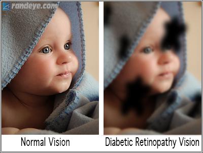 Diabetic Retinopathy Diabetes Rand Eye Institute