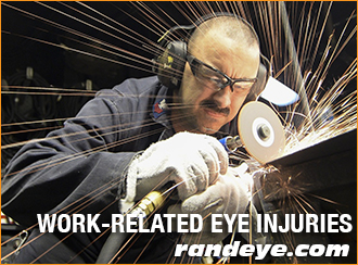 work-related-eye-injuries