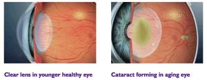clear-lens-cataract-lens