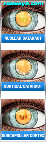 types-of-cataract