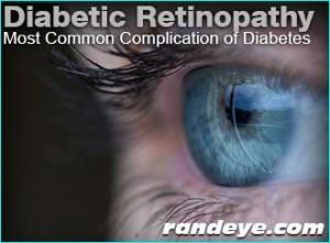 diabetic-retinopathy-common-diabetes