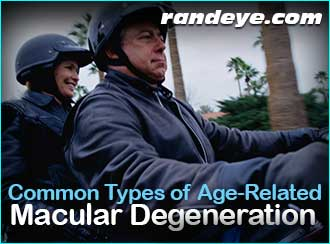 common-types-age-related-macular-degeneration