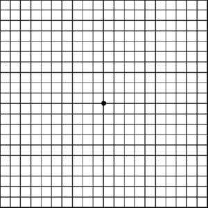 amsler-grid-sample