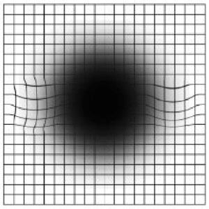 amsler-grid-self-test-sample